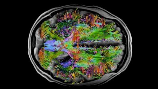 覆盖了整个大脑纤维