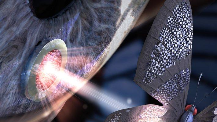 Eye implant