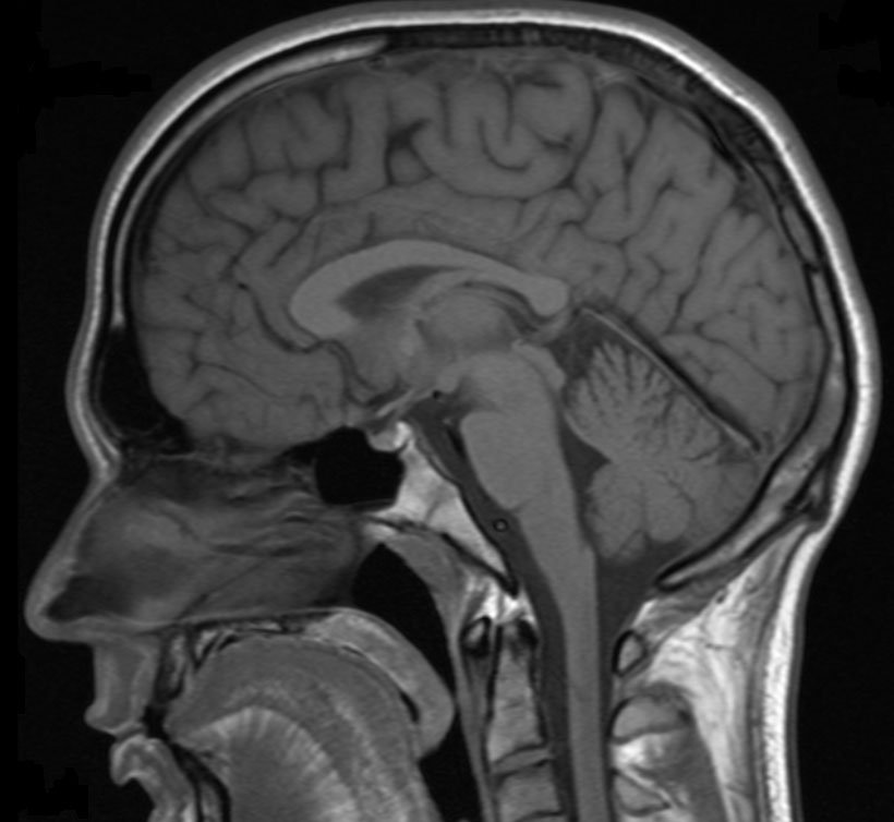 An MRI scan of the head.