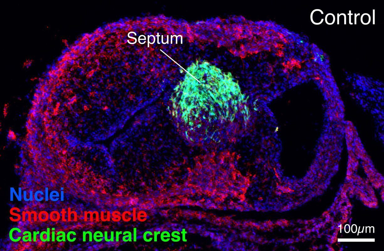 A six-day-old chicken embryo heart with neural crest cells labeled in green