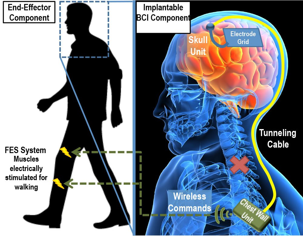 a diagram of a person and a brain