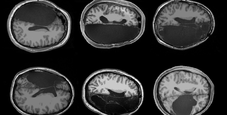Six brain scans