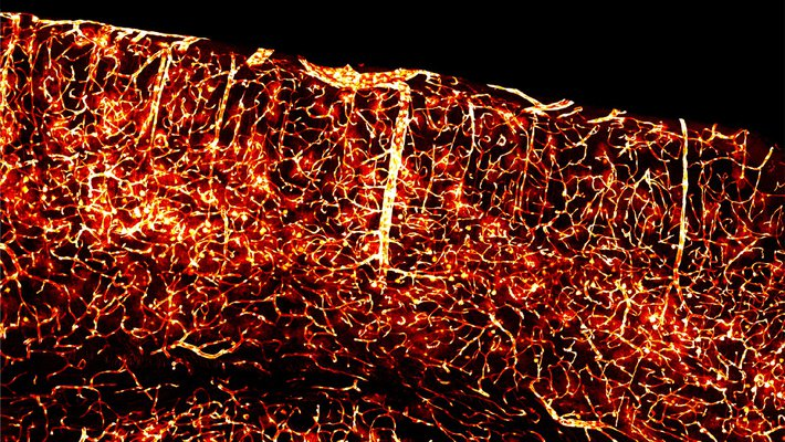 Glowing brain vasculature is made possible through