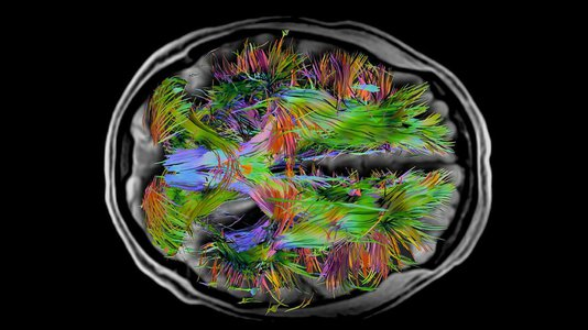 overlay of whole brain fibers